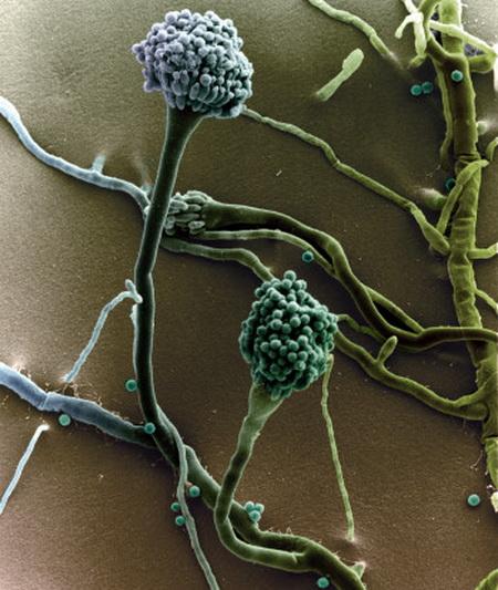 Аспергиллы.  Аспергиллез - болезнь, вызываемая различными видами плесневых грибов рода Aspergillus. Чаще протекает с преимущественным поражением легких, у лиц с иммунодефицитами принимает тяжелое септическое (генерализованное) течение. Фото: G. Wanner/Getty Images