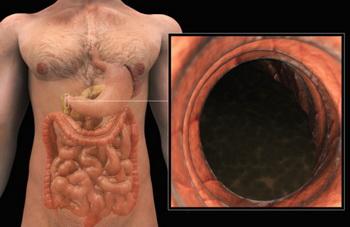 Фотография антрального отдела желудка, сделанная при помощи эндоскопии. Фото: 3D4Medical.com/Getty Images News