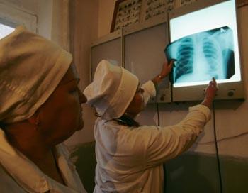 В России больных туберкулезом медики предложили принудительно изолировать. Фото: Karen Kasmauski/Getty Images