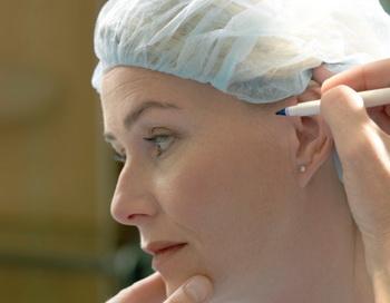 Подтяжка лица – одна из самых популярных пластических операций. Фото: Jonatan Fernstrom/Getty Images