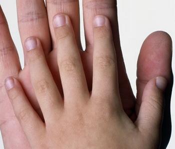 Ногти содержат информацию как минимум за 6 последних месяцев жизни человека, а иногда еще дольше. Фото: Anthony Saint James/Getty Images