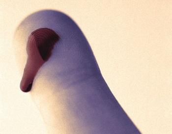 Необычный способ остановить кровотечение. Фото: TRBfoto/Getty Images