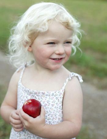 Альбинизм наследственное заболевание, которое передается детям от родителей. Фото: Vicky Kasala Productions/Getty Images