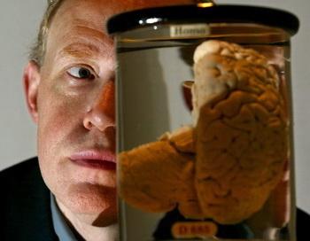 РАН: «Мозг-фунаментальные и прикладные проблемы». Фото: Sion Touhig/Getty Images