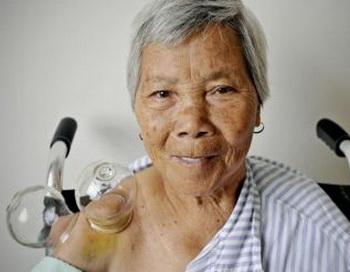 Пожилая женщина лечит ушиб на плече с помощью традиционной китайской медицины в медицинском центре Шанхая 24 сентября 2009 года. Фото: Philippe Lopez/AFP/Getty Images