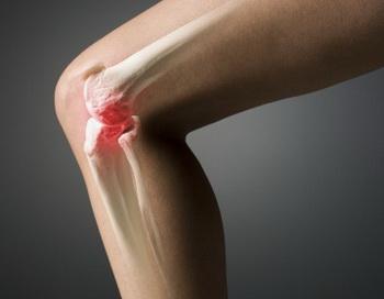 Чаще всего боль в суставе связана со случаями, так называемого деформирующего остеоартроза, который обычно дает о себе знать ближе к старости. Фото: Rubberball/Mark Andersen/Getty Images.