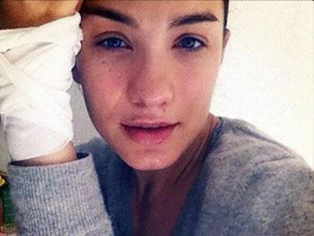 Виктория Дайнеко опровергла слухи о ринопластике, фото сделанное звездой в больничной палате. Фото с eurosmi.ru