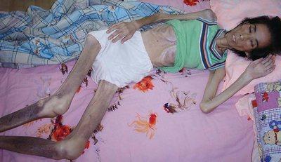Последовательница Фалуньгун Жэнь Шуде, которая была доведена до истощения рабским трудом и пытками в трудовом лагере Китая. Была убита в 2004 г. после двух лет заключения. Фото с faluninfo.ru