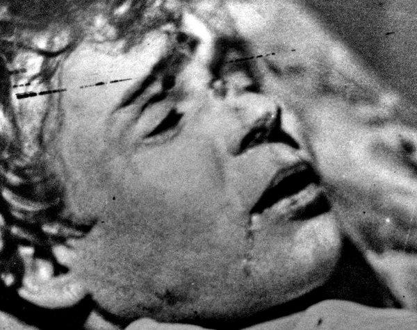 Сергей Есенин на кушетке, в гостинице, тело приведено в порядок и лицо заретушировано. Фото с сайта esenin.ru
