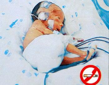 Всемирный день без табака. 31 мая - день отказа от курения. Фото: EVARISTO SA/AFP/Getty Images