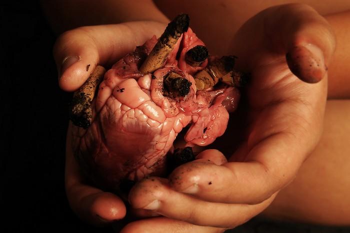 В морге Уфы у покойников вырезали глаза и извлекли органы. Фото: Photography-MS/flickr.com