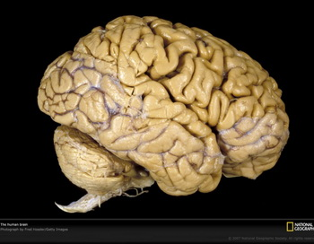 Мозг человека. Фото: medpro.com.ua