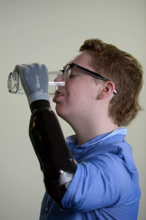 Патрик Кейн показывает свой новый революционный сенсорный протез 23 апреля 2013 г. в Ливингстоне, Шотландия. Фото: Jeff J Mitchell/Getty Images