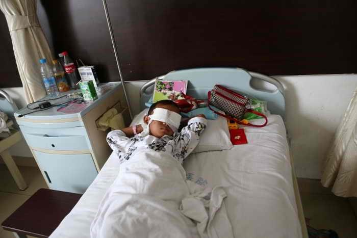 Мальчик в больнице в северо-восточном Китае, 27 августа. Полиция подозревает, что глаза ему выколола тётя. Фото: STR/AFP/Getty Images