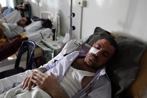 Фоторепортаж с места теракта в Дамаске. Фото: LOUAI BESHARA/AFP/Getty Images