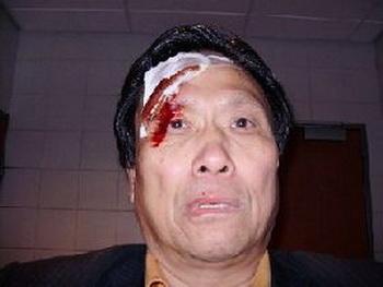 Г-н Чэн получил повреждения лица (фото предоставлено г-ном Чэном)