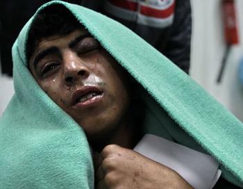Раненые бойцы ливийской оппозиции в госпитале. Фото РИА Новости
