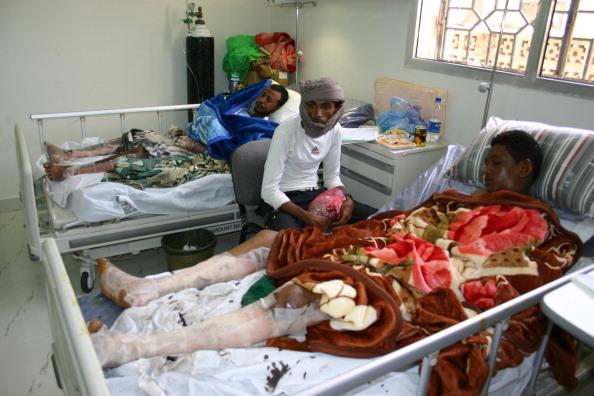 В Йемене количество жертв взрыва достигло 150 человек. Фото: credit should read /AFP/Getty Images