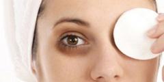 Как убрать синяки под глазами раз и навсегда