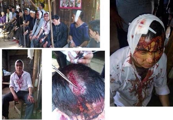 Крестьяне, пострадавшие от полицейских дубинок. Провинция Цзянси. Март 2014 года. Фото с epochtimes.com