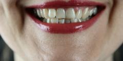 Как сделать так, чтобы пломбирование зубов не вызывало страха