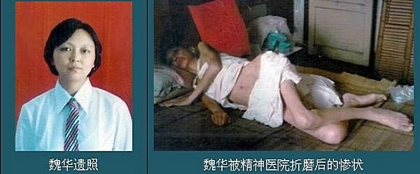 Последовательница Фалуньгун Вэй Хуа. Умерла после освобождения из психиатрической лечебницы города Чунцина. Слева фотография до репрессий, справа — после применения психотропных препаратов. Фото: minghui.org