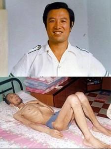 Последователь Фалуньгун Ма Сюэцзюнь до и после пыток в заключении в Китае