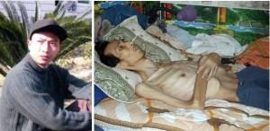 Последователь Фалуньгун Чэнь Цзяньчжун до и после пыток в заключении в Китае