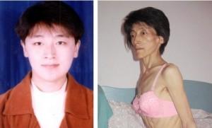 Последовательница Фалуньгун Сун Яньчунь до и после пыток в заключении в Китае