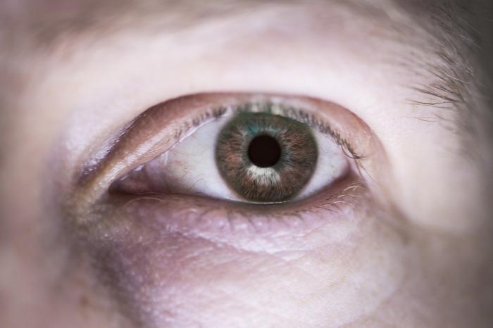 Мешки под глазами. Причины и способы лечения