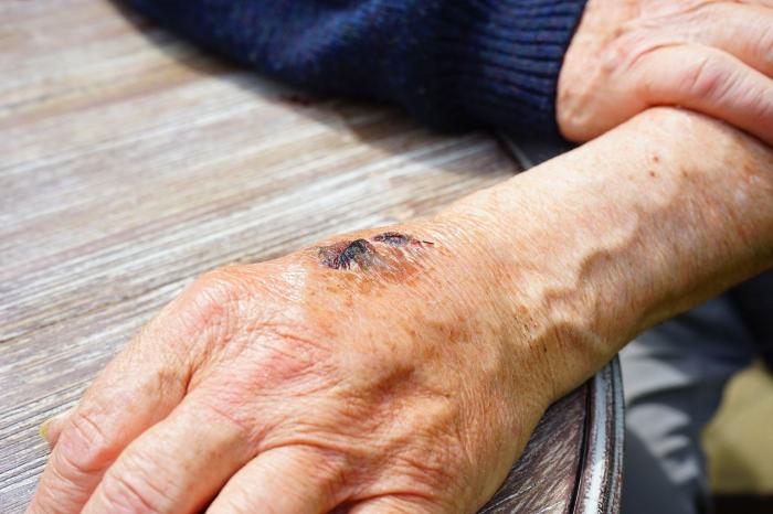 Учёные создали «вторую кожу», которая мгновенно устраняет признаки старения