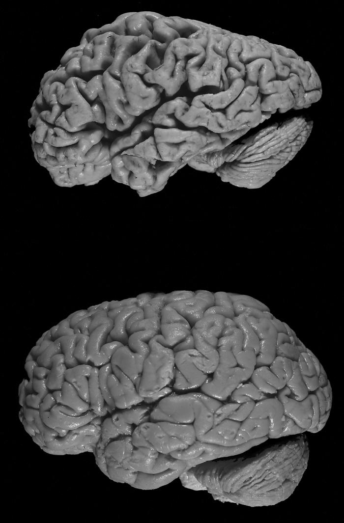 Наверху мозг человека с болезнью Альцгеймера. Внизу мозг здорового человека