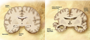 Alzheimers_disease_brain_comparison