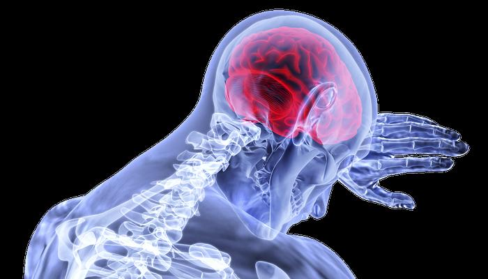 Инсульт может ускорить старение мозга