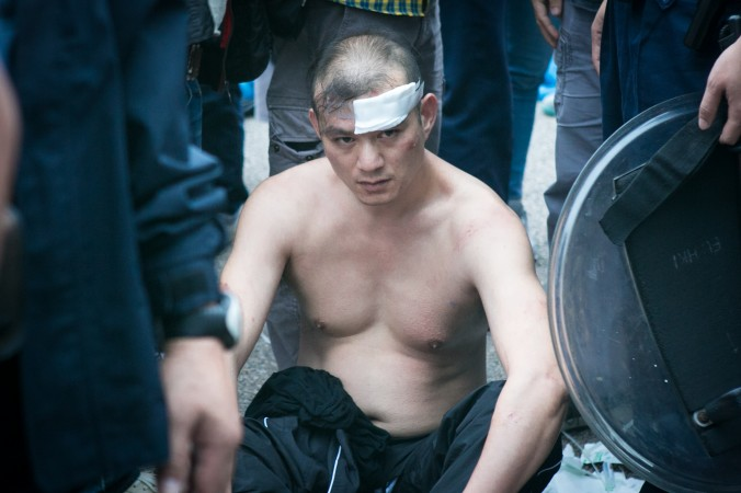 Один из противников студенческого движения, который бросал потроха животных во владельца газеты Apple Daily Джимми Лая, получил травму головы после стычки с протестующими в Гонконге 12 ноября 2014 года. Фото: Benjamin Chasteen/Epoch Times