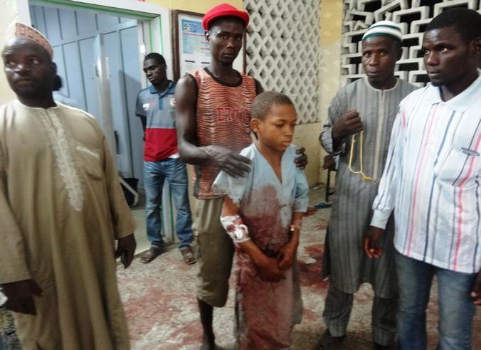 Пострадавшие от взрыва у мечети нигерийского города Кано доставлены на скорой помощи в больницу, Нигерия, 28 ноября, 2014 год. Фото: AMINU ABUBAKAR/AFP/Getty Images