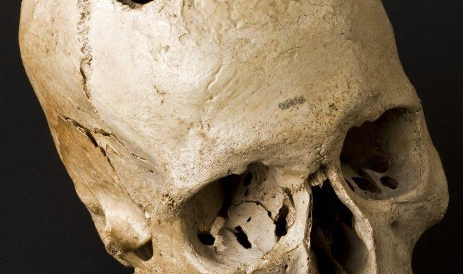 Чудеса древней медицины: сибирские врачи проводили операции на мозге
