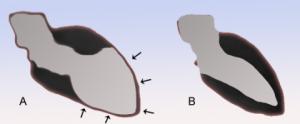 """Кардиопатия такуцобо или синдром """"разбитого сердца"""". Фото: Фото: J. Heuser/wikimedia commons"""