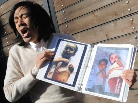 Миссионер Роберт Пак демонстрирует фотографии детей Северной Кореи, страдающих от недоедания. Фото: PARK JI-HWAN/AFP/Getty Images