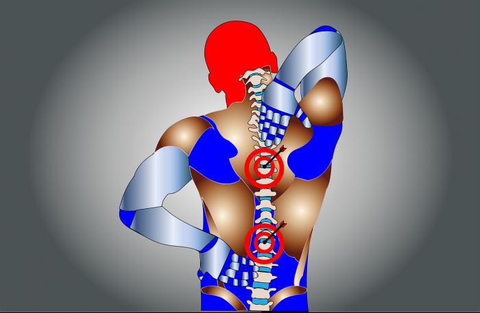 Остеохондроз: причины возникновения и варианты лечения