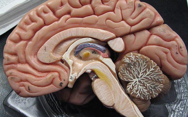 Француз 44 года прожил практически без мозга