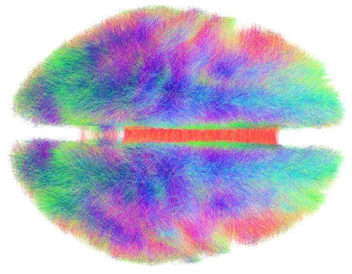 медитация, головной мозг, коннектом