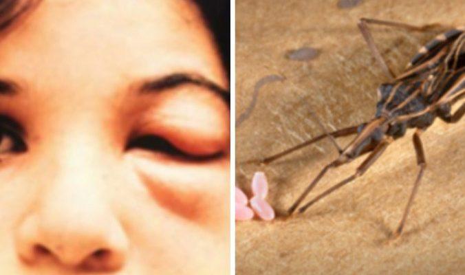 Целующие клопы: болезнью Шагаса инфицировано 12 человек в Техасе и от 7 до 8 миллионов во всём мире