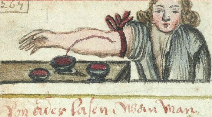 Кровопускание использовалось для лечения болезней в прошлом. Фото: Wellcome Library, London, CC