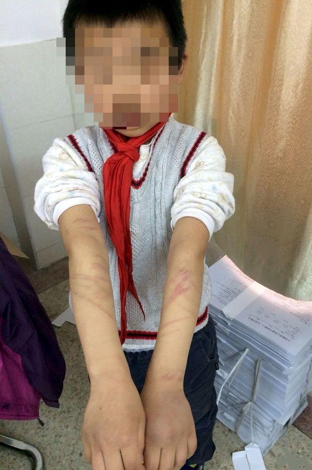 Шрамы на руках Ши. Фото: Sina
