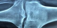 Победа над ревматоидным артритом