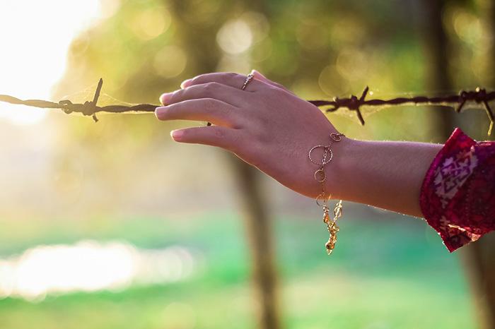 артрит, рука