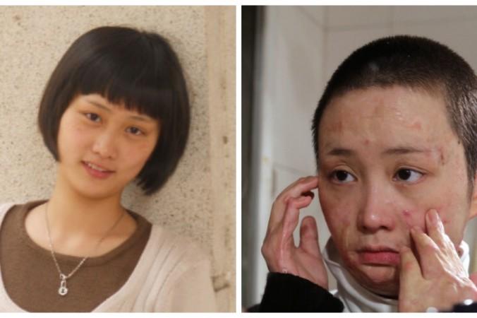 Чжоу Янь до и после нападения. Фото: Sina Weibo