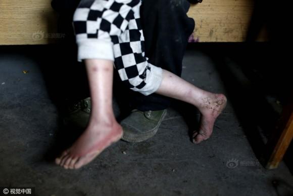 Ноги Цинь грязные и покрыты ссадинами, потому что у неё нет обуви. Она постоянно бегает вокруг и тащит предметы в рот.