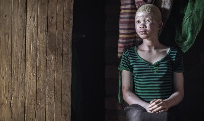 Охота на альбиносов в Малави: число убийств растёт